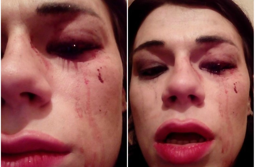 Close up photos of Miranda Pagava's face with a cut on on her left eye and is dropping blood