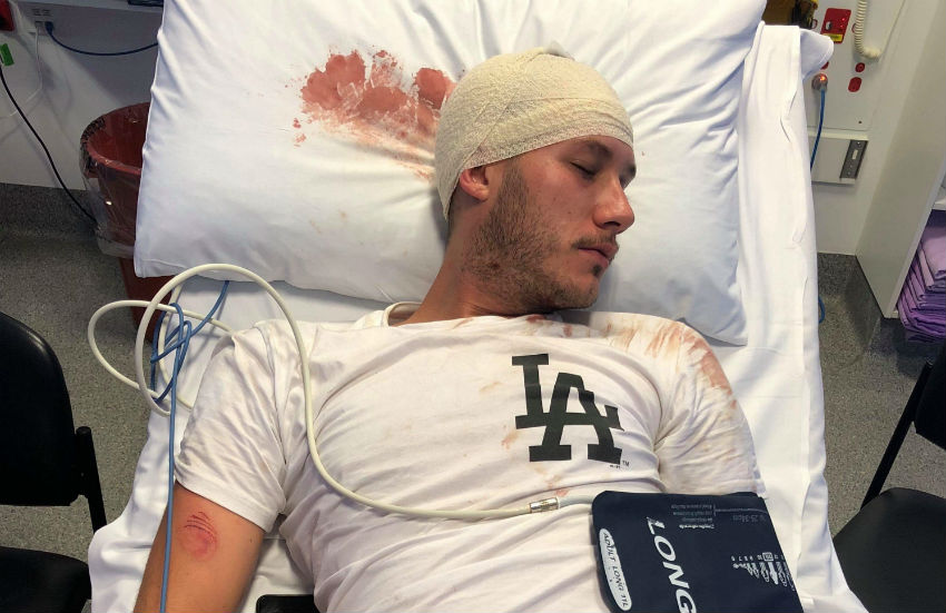 Bradley Skinner says he was hit repetedly with a bike chain until he passed out