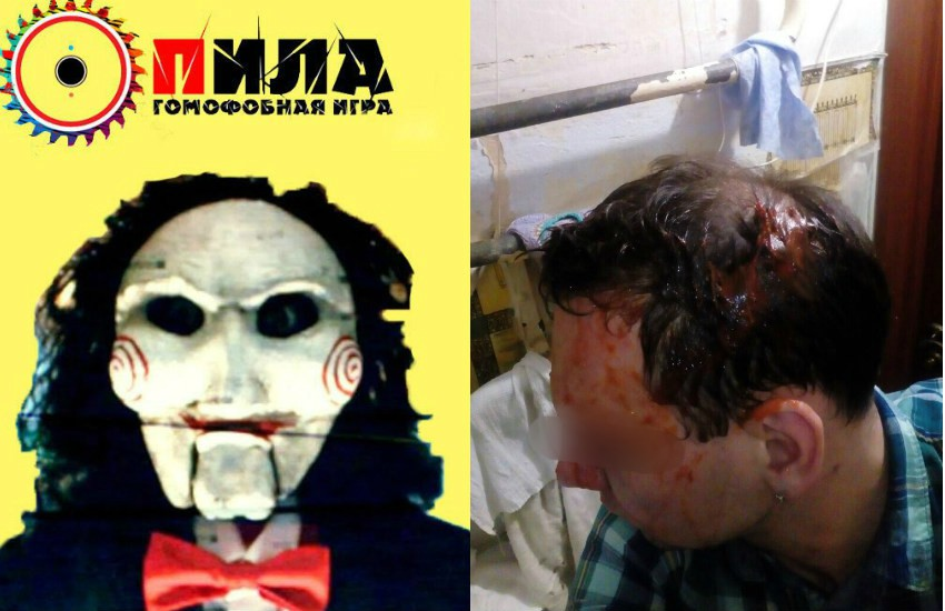 Two photos, one on the left is a screenshot of a website which features the clown from the movie saw with a russian title over his head in front of a yellow background. The Photo on the rights is of a man's head he has been beaten and blood is pouring from his head