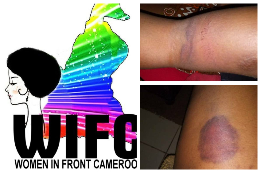 three photos. one is the WIFC logo, a rainbow version of cameroon's borders behind a black silhouette of a lady. the other two photos are body parts covered in bruises