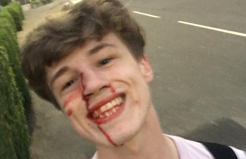 a selfie of a smiling young man who has a cut on his nose and blood pouring down his face
