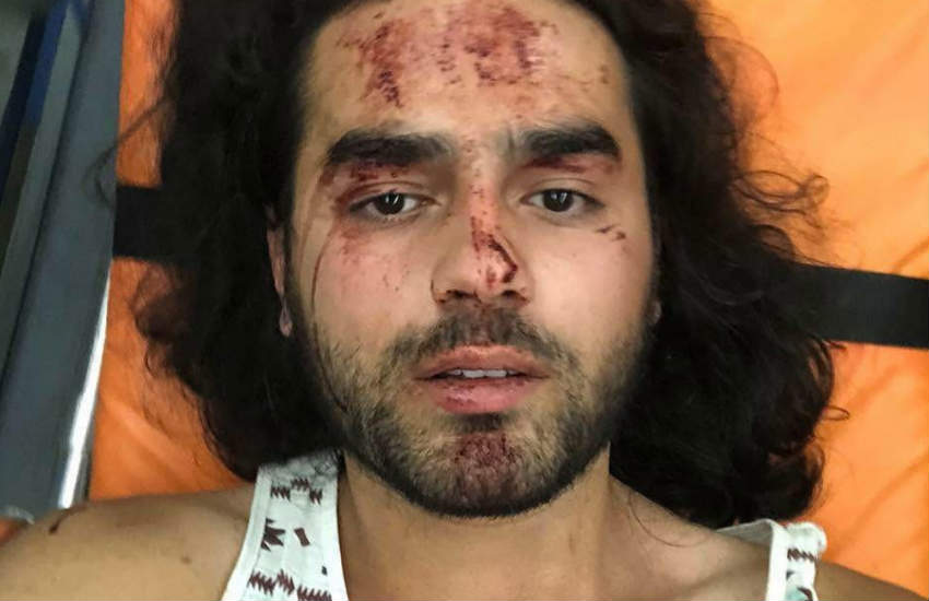 One of the victims of the attack with scratches all over his face.