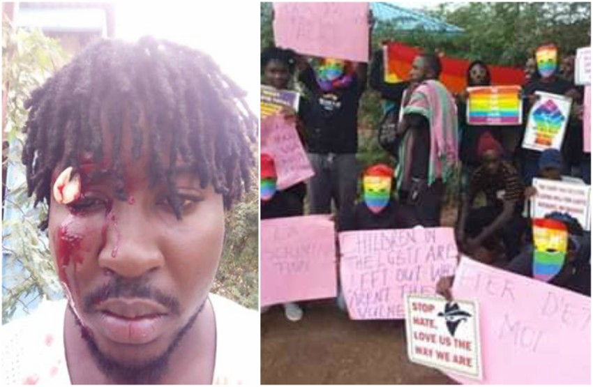 two photos. one on the left is a close up of a man's face with blood pouring down it. the photo on the right is a group of people, some of which are wearing rainbow masks and holding placards on pink paper