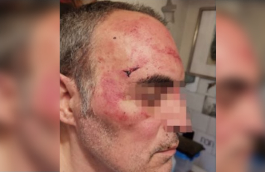 This 53-year-old man was brutally beaten in Turin, Italy | Photo: Facebook