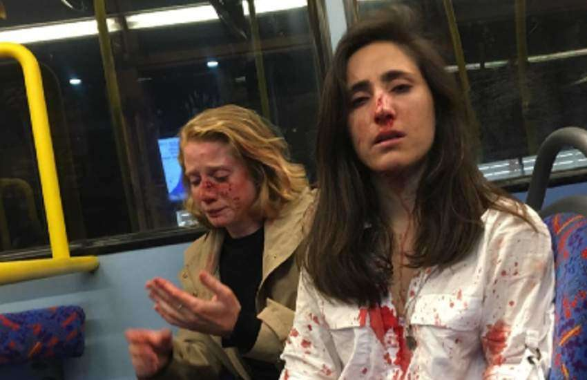 Chris (L) and Melania after the London bus attack. They're covered in blood.